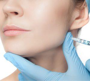 aplicación de ácido hialurónico en arco mandibular