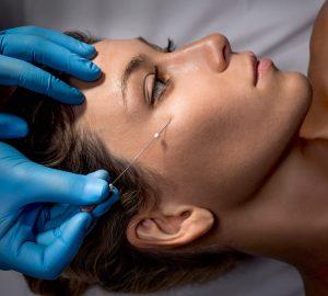 aplicación de hilos tensores en la cara